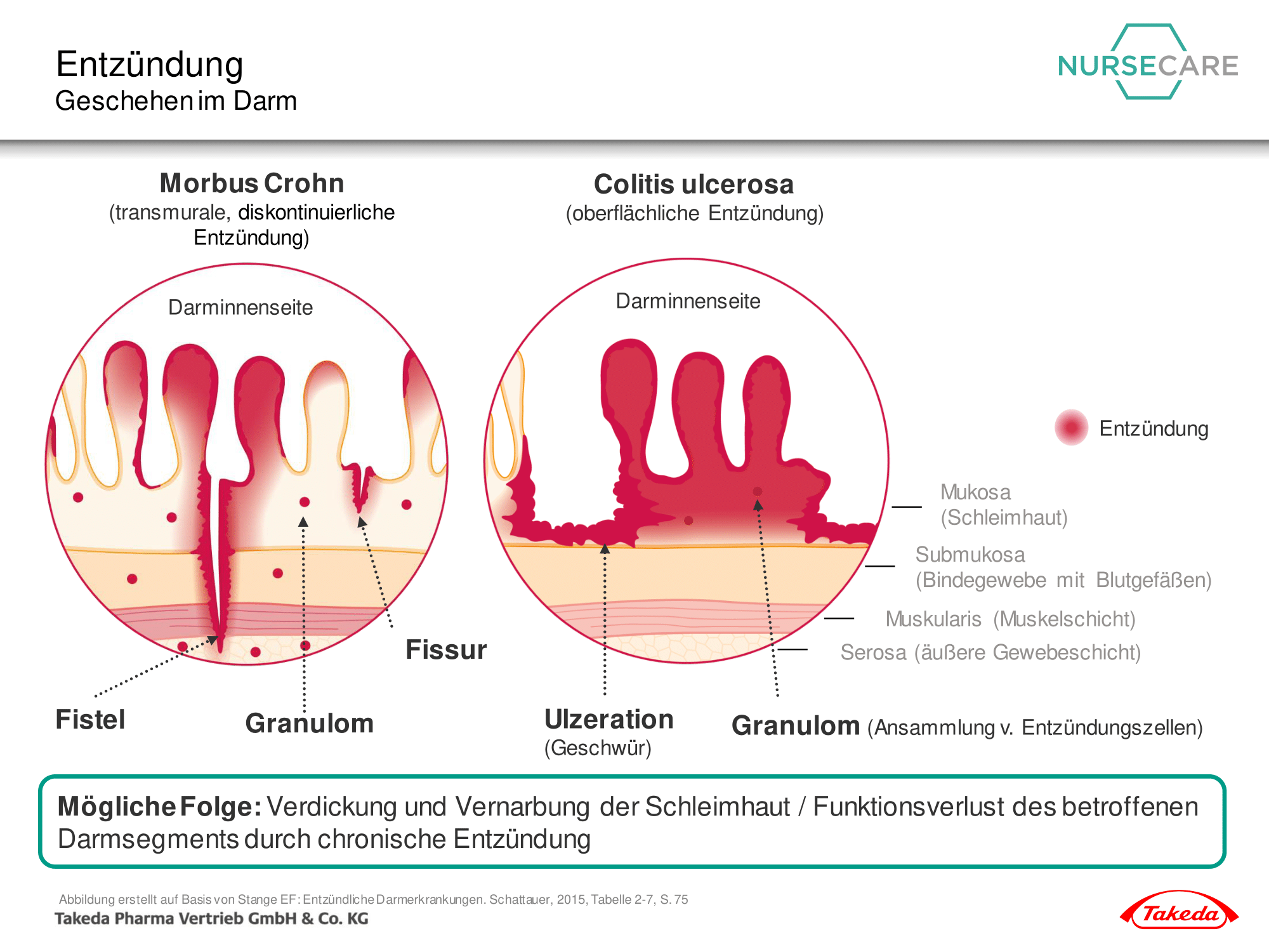 Grundlagen der CED | www.takeda-gastroenterologie.de/nursecare